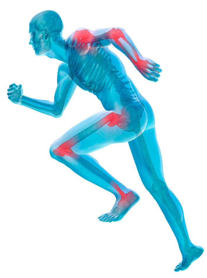 15++ Nj arthritis and osteoporosis center info